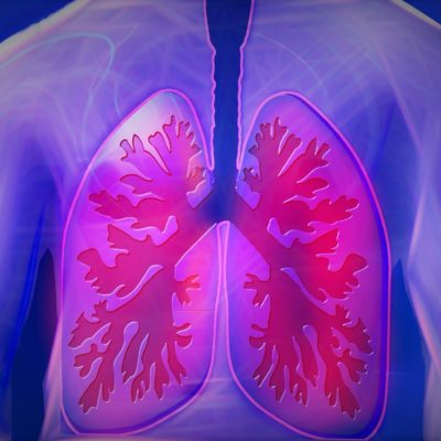 Bronchitis - Causes & Natural Remedies To Help